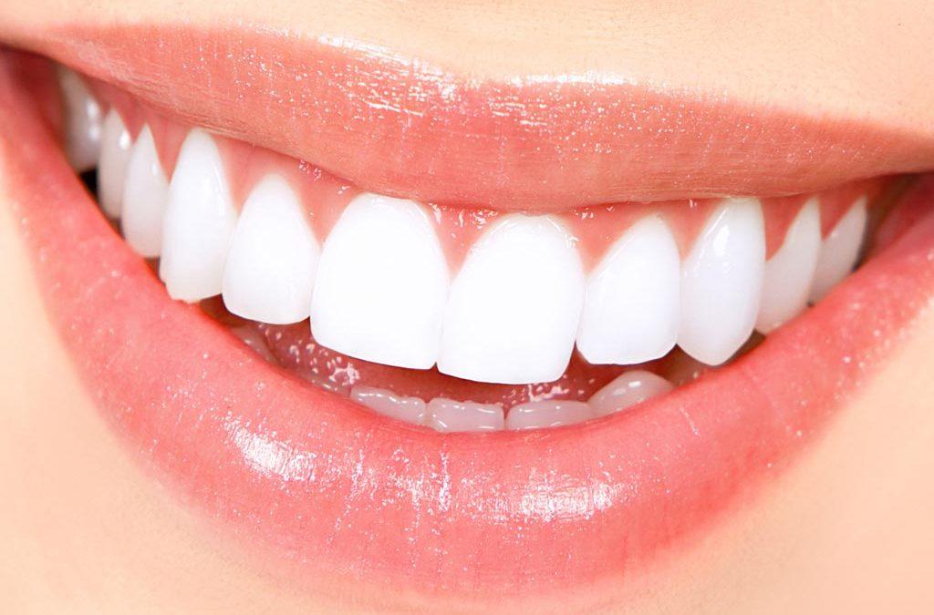 Cuidado con los blanqueamientos dentales exprés