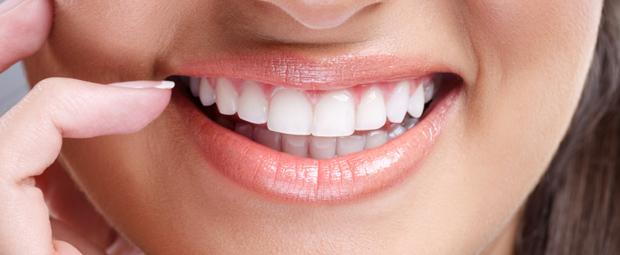 Tratamientos estéticos dentales en Madrid: en busca de la sonrisa perfecta