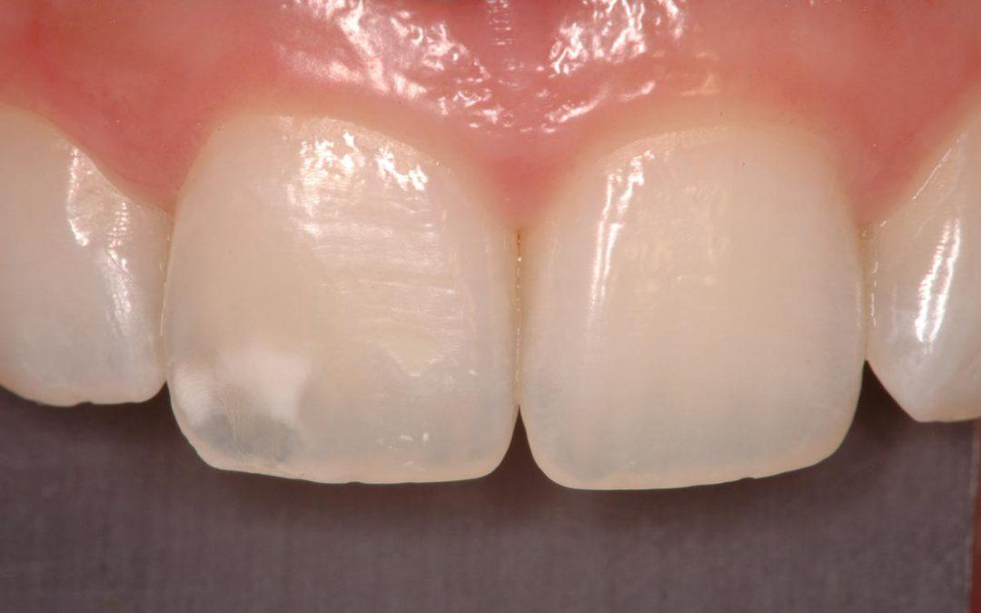 Tratamientos para las manchas en los dientes