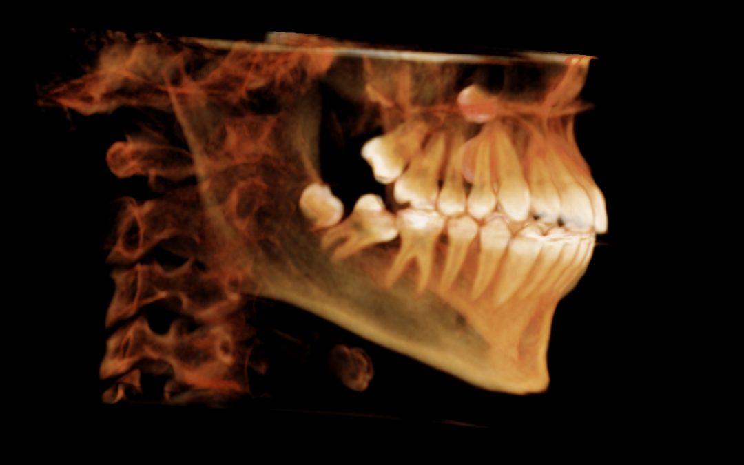 Las aplicaciones de la radiología en tres dimensiones