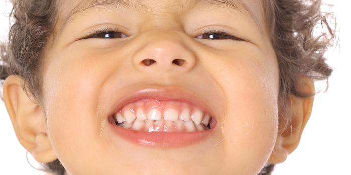 El rechinamiento de dientes en los niños