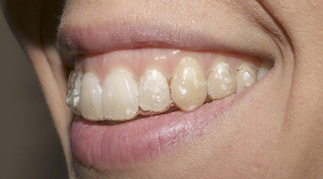 Descubre el tratamiento Invisalign ¡somos clínica dental certificada!