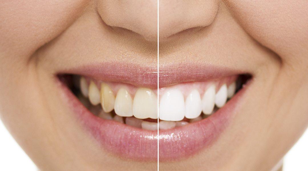 Tratamientos de blancamiento dental