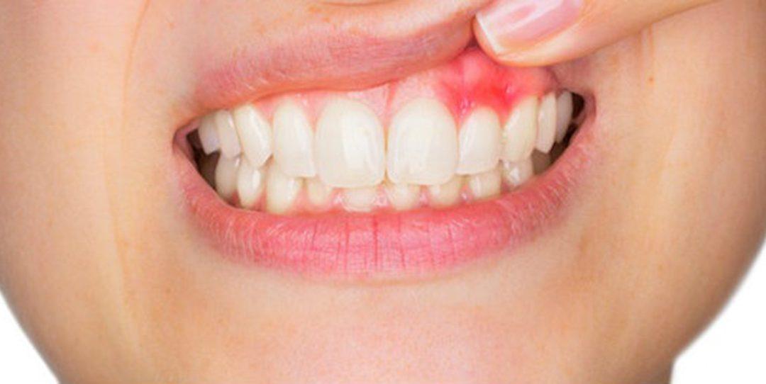 ¿Cuáles son las causas del sangrado de encías y cómo solucionarlo?