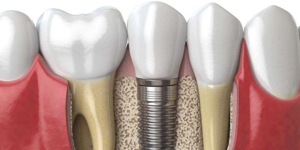 Los implantes dentales, un producto cada vez más demandado