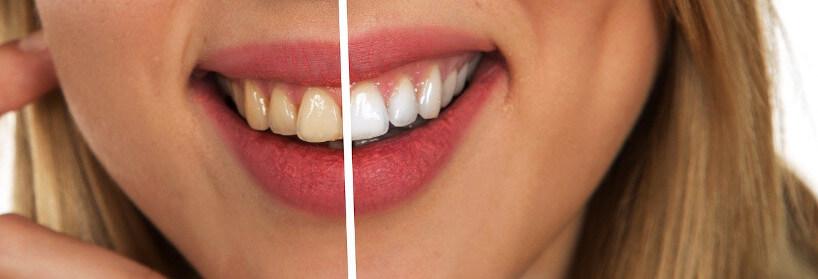 ¿Cuánto tiempo dura un blanqueamiento dental? ¿Cuándo hacerlo?