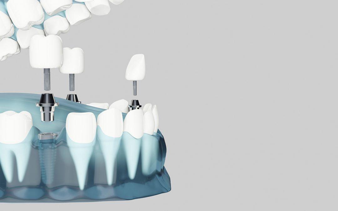 Cómo cuidar tus implantes dentales